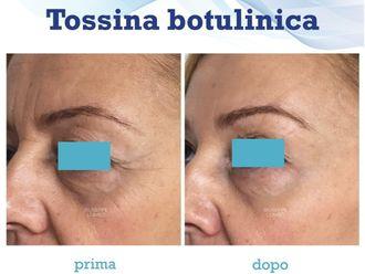 Botulino-786174