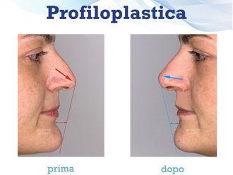 Rinoplastica - 786179