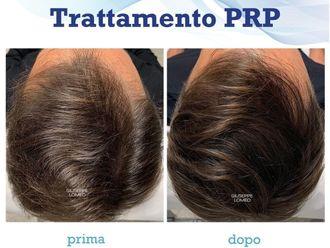 Prp-786181