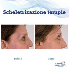 Ringiovanimento viso - Dott. Giuseppe Lomeo