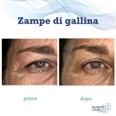 Botulino - Dott. Giuseppe Lomeo