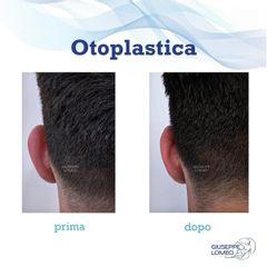 Otoplastica - Dott. Giuseppe Lomeo