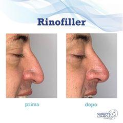 Rinofiller - Dott. Giuseppe Lomeo