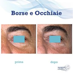 Eliminare occhiaie - Dott. Giuseppe Lomeo