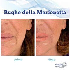 Rughe - Dott. Giuseppe Lomeo