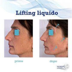 Lifting viso - Dott. Giuseppe Lomeo