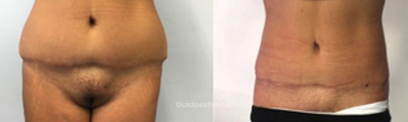 Liposcultura per revisione addominoplastica