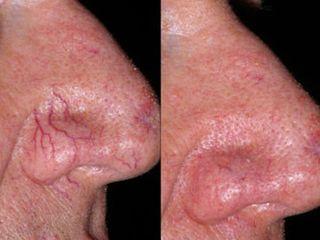 Laser vascolare prima e dopo
