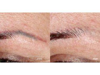 Laserterapia-771095