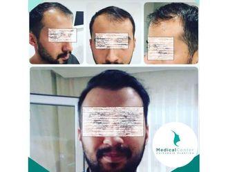 Trapianto capelli-769213
