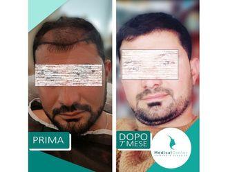 Trapianto capelli-769217