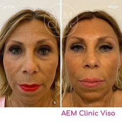 Full face filler botox prima e dopo