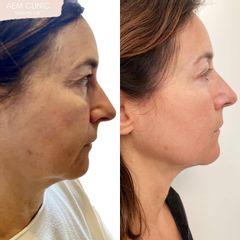 Nefertiti Lift Botox prima e dopo