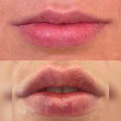 Filler labbra - Dr. Luca Zattoni