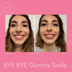 Gummy smile sorriso gengivale correzione con filler - Dr. Luca Zattoni