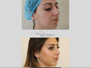 Profilometrica prima e dopo