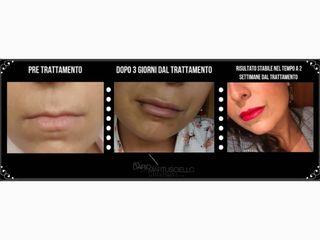 Protesi labbra prima e dopo