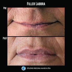 Filler labbra - Studio Regina Maria Pia