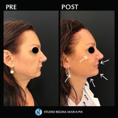 Filler Mento - Studio Regina Maria Pia