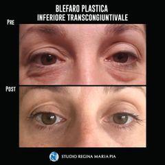 Blefaroplastica - Studio Regina Maria Pia