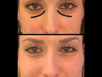 Eliminare occhiaie-775828