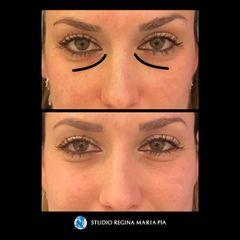 Eliminare occhiaie - Studio Regina Maria Pia