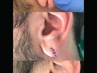 Chirurgia ricostruttiva-775872
