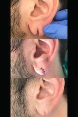 Chirurgia ricostruttiva - Studio Regina Maria Pia