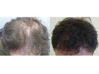 Trapianto di capelli prima e dopo