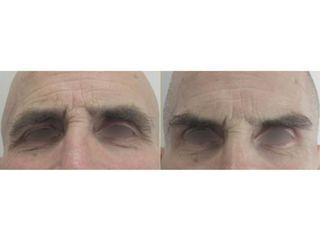 Lifting viso - Dott. Stefano Bezzi