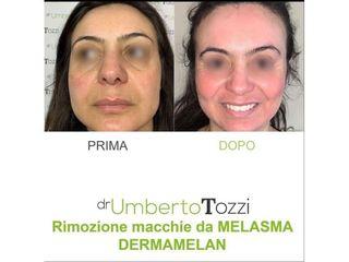 Melasma - Dott. Umberto Tozzi