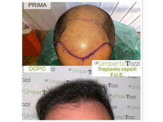 Trapianto capelli - Dott. Umberto Tozzi