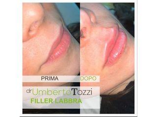 Filler labbra - Dott. Umberto Tozzi