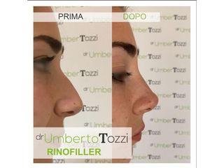 Rinofiller - Dott. Umberto Tozzi