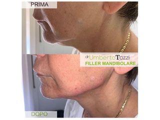 Filler mandibolare - Dott. Umberto Tozzi