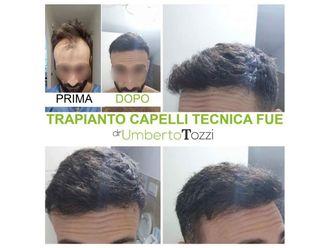 Trapianto capelli-772641