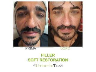 Filler - Dott. Umberto Tozzi