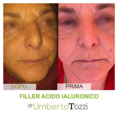 Acido ialuronico - Dott. Umberto Tozzi