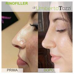 Rinofiller - Dott. Umberto Tozzi - Clinique Visage