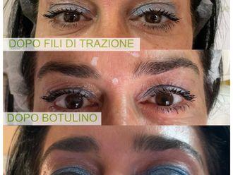 Botulino-773556