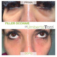 Eliminare occhiaie - Dott. Umberto Tozzi - Clinique Visage