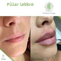 Filler labbra - Dott. Umberto Tozzi - Clinique Visage