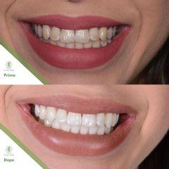 Sbiancamento dentale - Dott. Umberto Tozzi - Clinique Visage