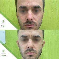 Otoplastica - Dott. Umberto Tozzi - Clinique Visage