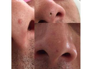 Verruche - Dott. Virgilio Medical Laser