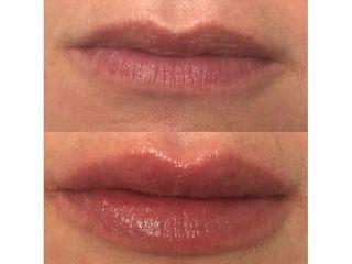 Filler labbra - Dott. Virgilio Medical Laser