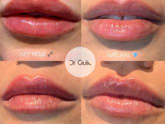 Filler labbra-770938