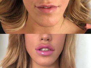 Filler labbra - Dott. Alberto Poli Cliniche Nova Genesis