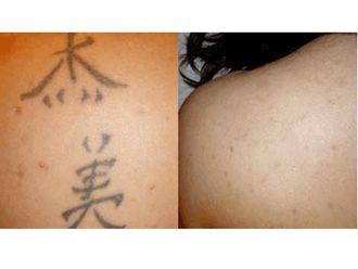 Rimozione tatuaggi-751439