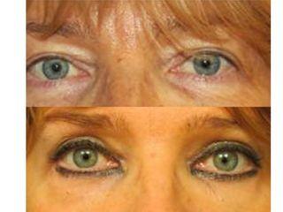Blefaroplastica prima e dopo